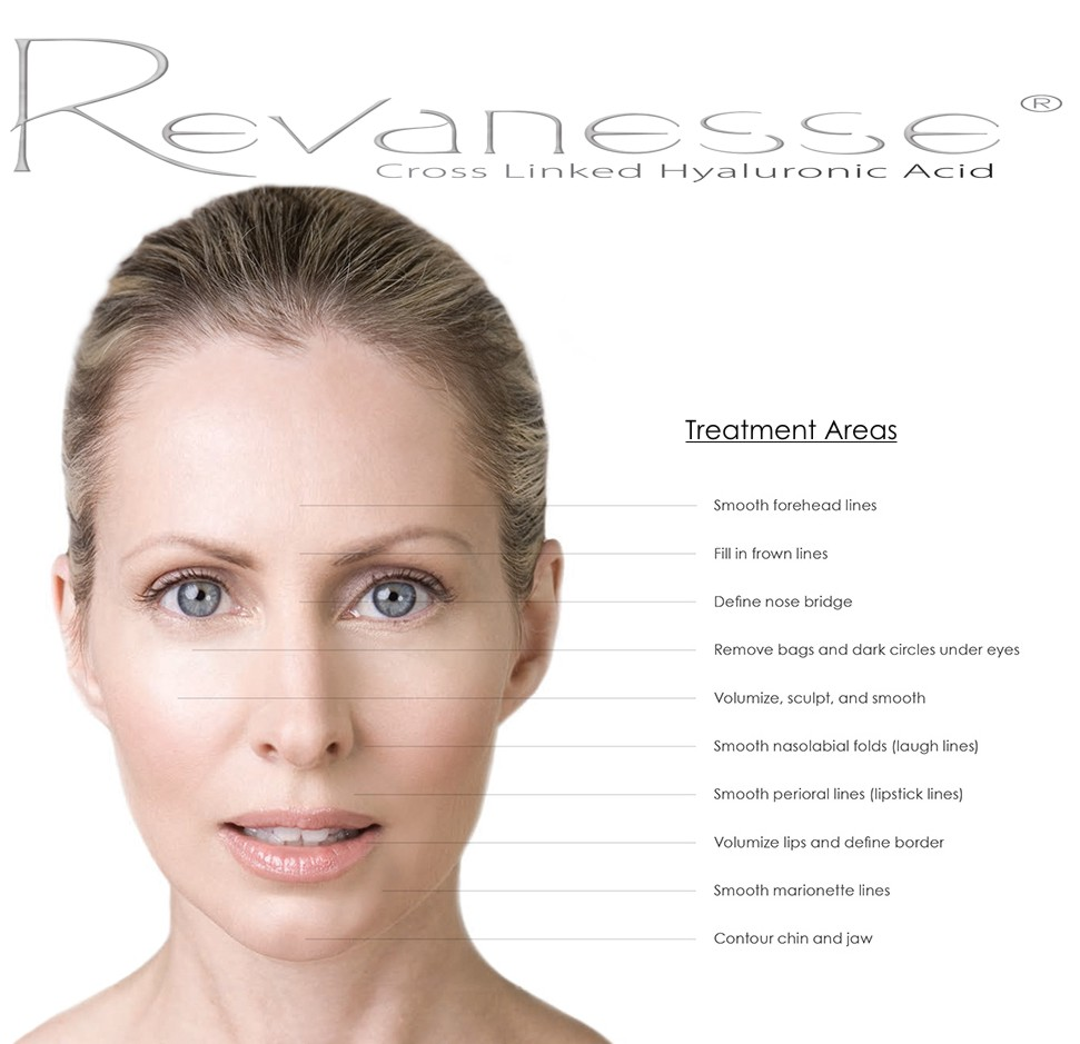 What is Revanesse Cosmetic Filler and How Does it Differ from