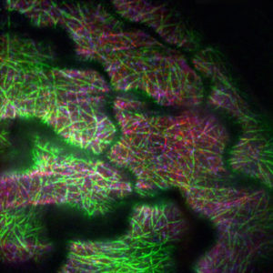 Fluorescent dyes light up the areas of activity for regulator IMB4 (red) along green microtubules in a growing plant cell. (Image: Dixit lab)