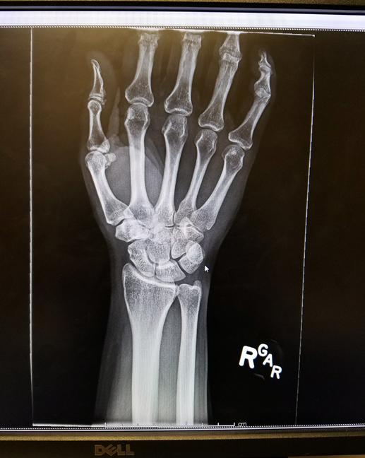 XRay-Hand.jpg