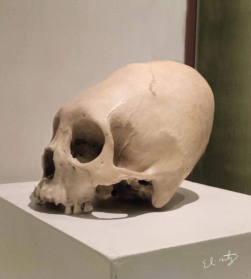 paracas skull 1.jpg