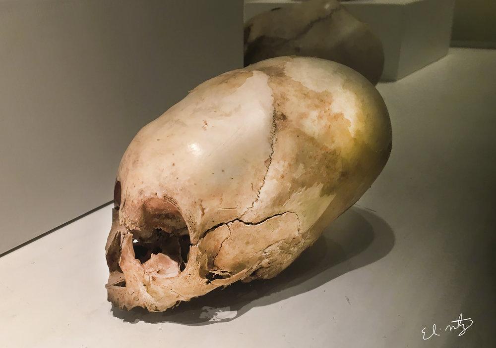 paracas skull.jpg