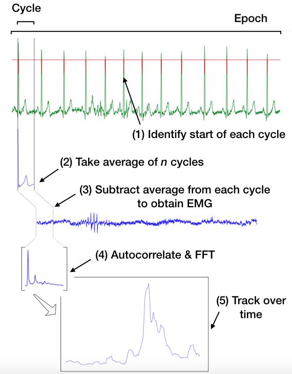 Steps involved in extracting EMG from the combined ECG+EMG signal measured using noninvasive ECG electrodes on the patient's chest.