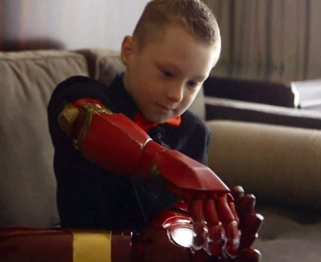 Seven year old Alex, who was born with a partially developed right arm was given a Iron Man themed prosthetic arm as a gift by Robert Downey Jr. This Arm uses MyoWare sensor as controls for operation.
