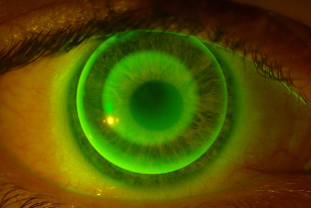 Coloured contact lenses at Eyre Eye Centre