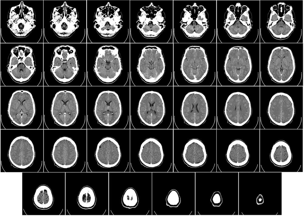 Computed tomography of human brain