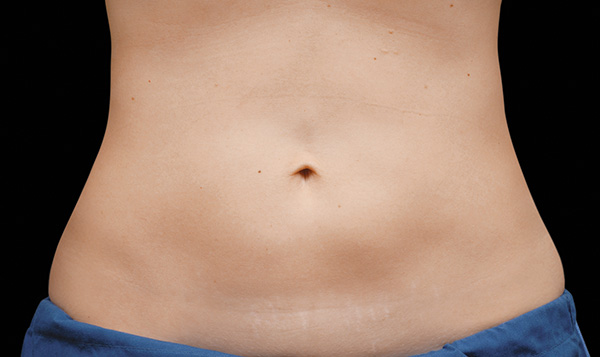 After CoolSculpting; Photos courtesy of Flor A. Mayoral, MD - individual results may vary