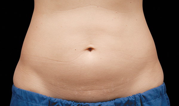 Before CoolSculpting; Photos courtesy of Flor A. Mayoral, MD