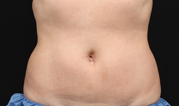 After CoolSculpting; Photos courtesy of Leyda E. Bowes, MD