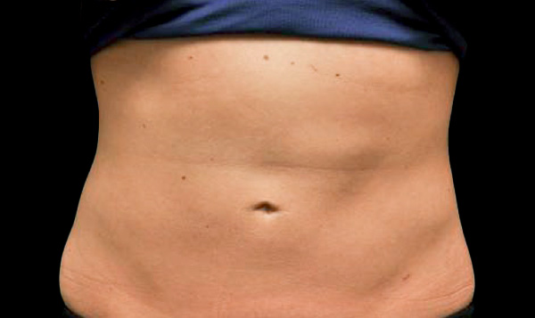 After CoolSculpting; Photos courtesy of Kathleen Welsh, MD - individual results may vary