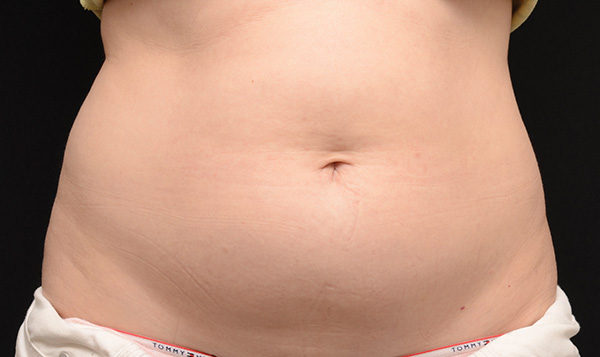 Before CoolSculpting; Photos courtesy of Edward Becker, MD