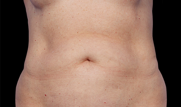 Before CoolSculpting; Photos courtesy of Grant Stevens, MD, FACS