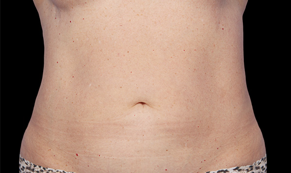 After CoolSculpting; Photos courtesy of Grant Stevens, MD, FACS
