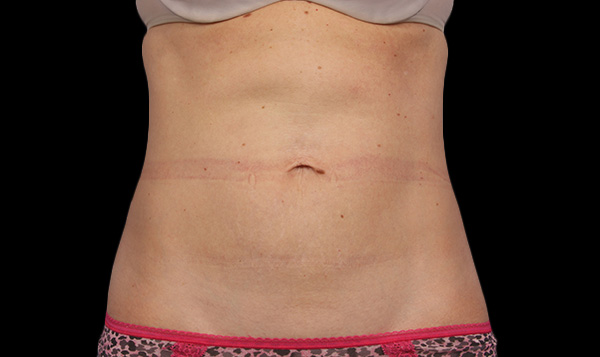 After CoolSculpting; Photos courtesy of Grant Stevens, MD, FACS - individual results may vary