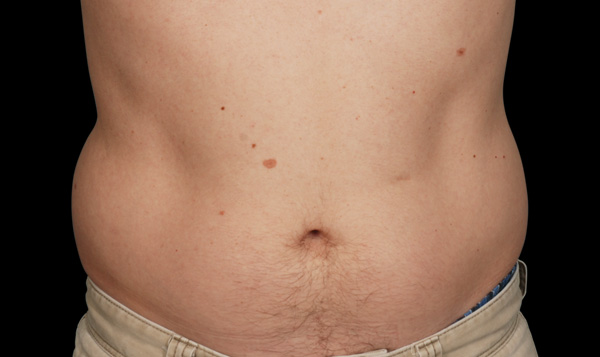 Before CoolSculpting; Photos courtesy of Barry DiBernardo, MD, FACS