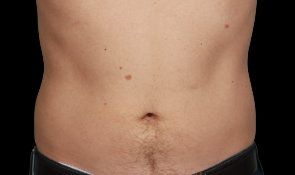 After CoolSculpting; Photos courtesy of Barry DiBernardo, MD, FACS