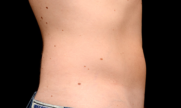 After CoolSculpting; Photos courtesy of Edward Becker, MD - individual results may vary