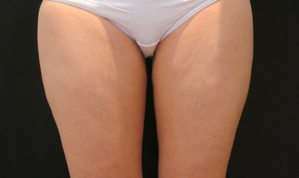 After CoolSculpting; Photos courtesy of Tracy Mountford, MD