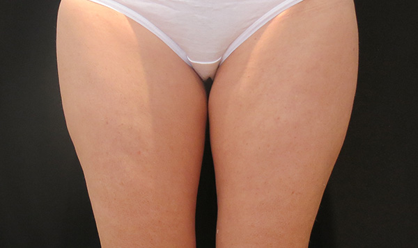 Before CoolSculpting; Photos courtesy of Tracy Mountford, MD