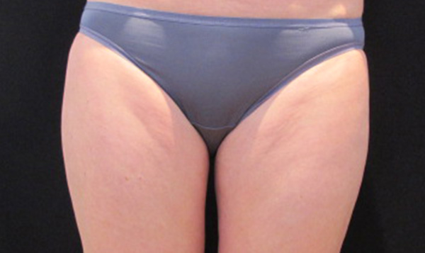 After CoolSculpting; Photo courtesy of Tracy Mountford, MD