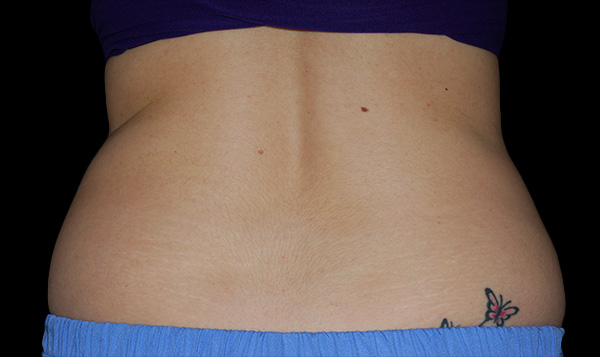 Before CoolSculpting; Photos courtesy of Ron Shelton, MD