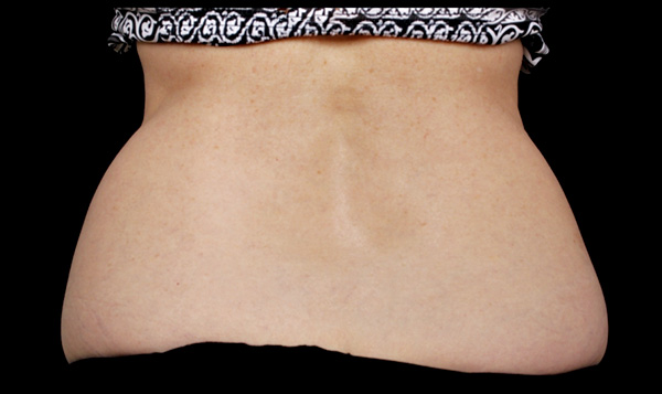 Before CoolSculpting; Photos courtesy of Suzanne Bruce, MD