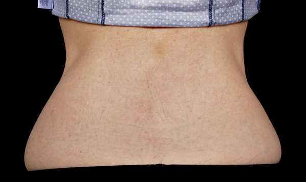 After CoolSculpting; Photos courtesy of Suzanne Bruce, MD - individual results may vary