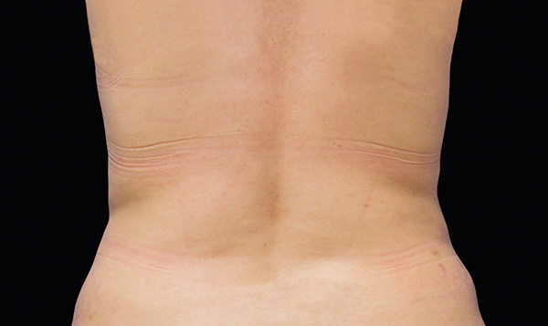 After CoolSculpting; Photos courtesy of Daniel Behroozan, MD
