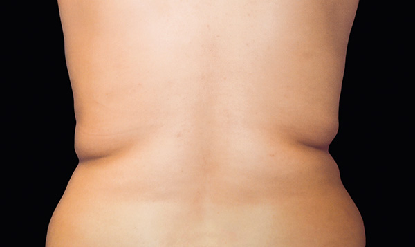 Before CoolSculpting; Photos courtesy of Daniel Behroozan, MD