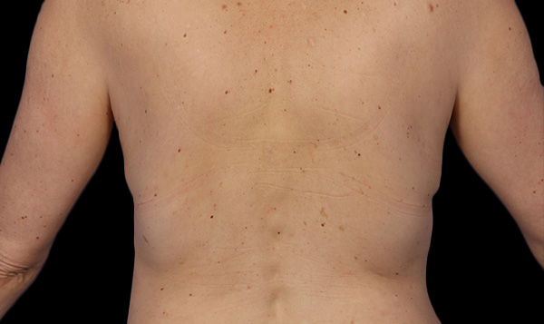 After CoolSculpting; Photos courtesy of Grant Stevens, MD