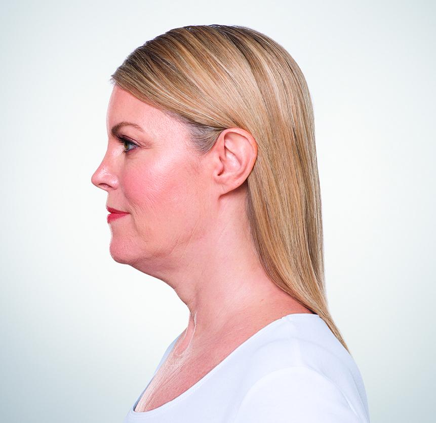 Pre-Kybella Treatments