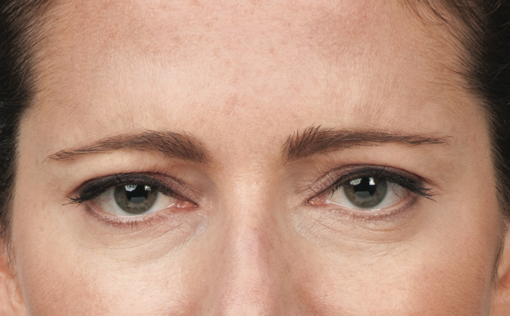 After Botox (Hollis, 39)
