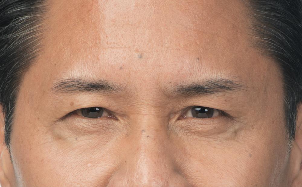 After Botox (Clint, 54)