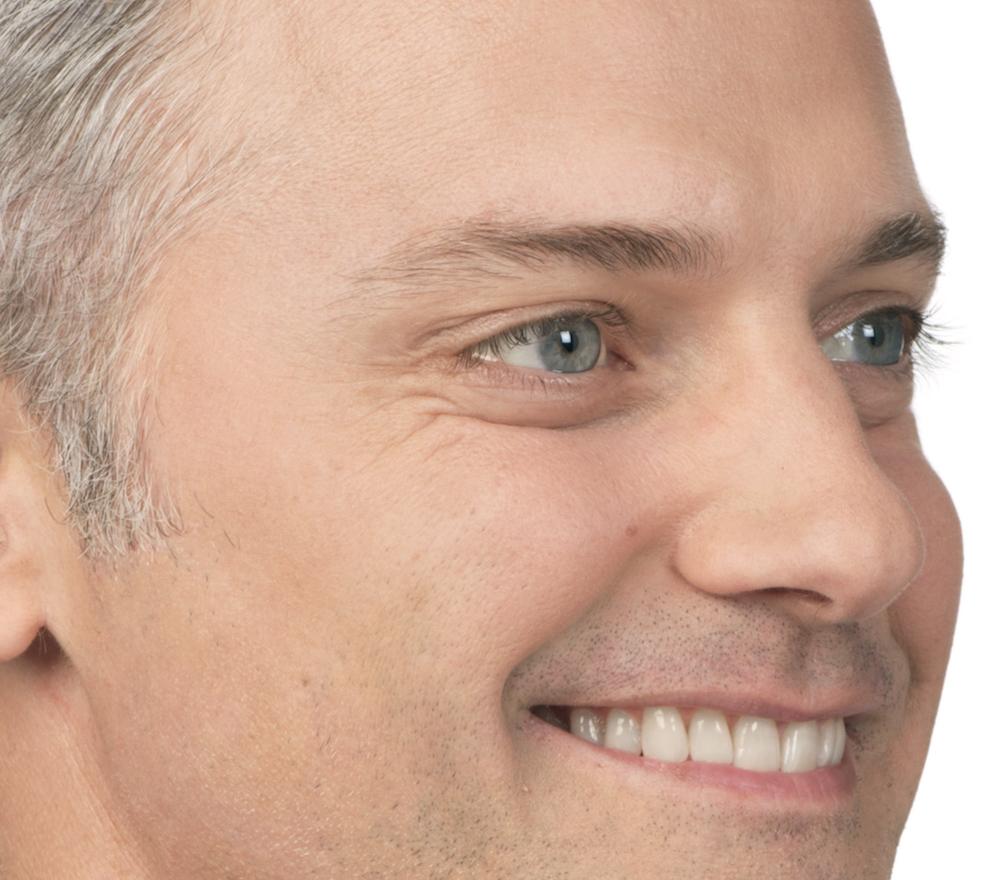 After Botox (Max, 40)