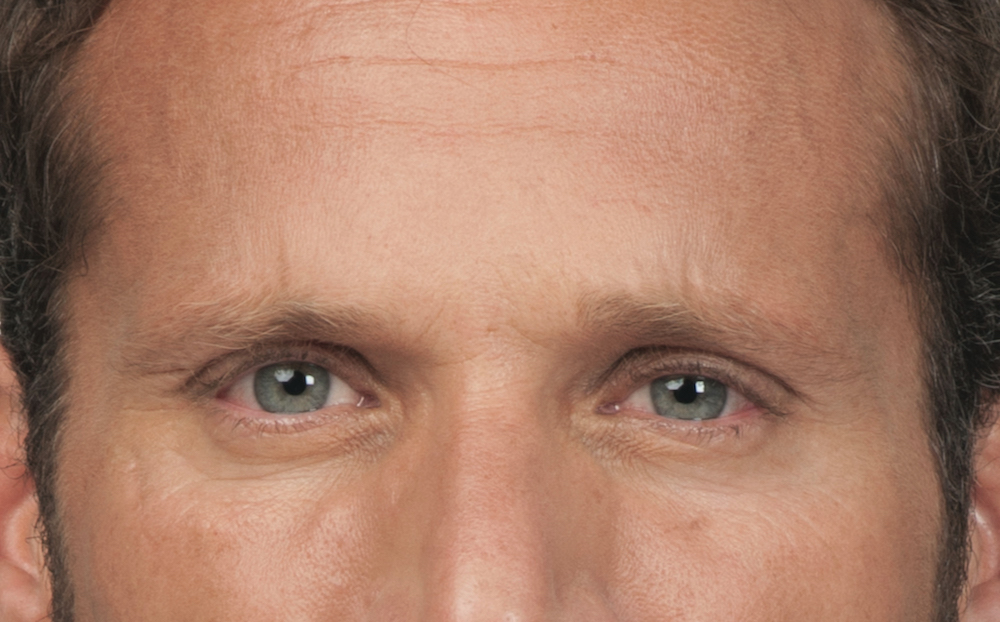 After Botox (Stephen, 44)
