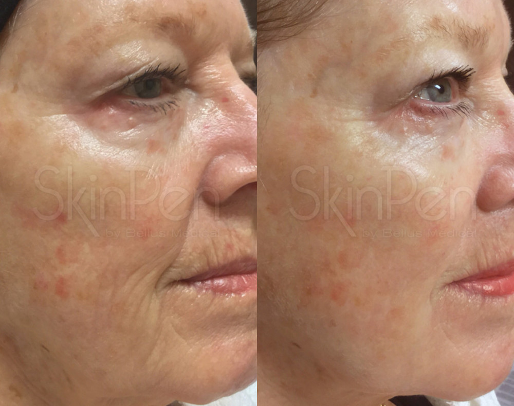 After 2 SkinPen Treatments (Female, 72)