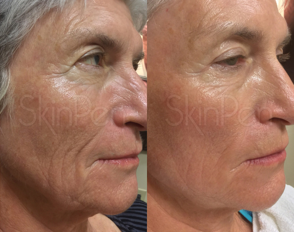 After 2 SkinPen Treatments (Female, 66)