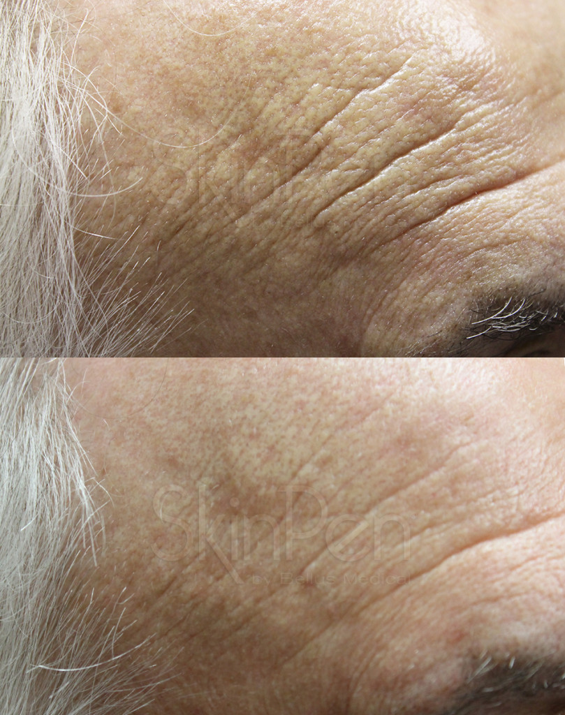 After 5 SkinPen Treatments (Male, 72)