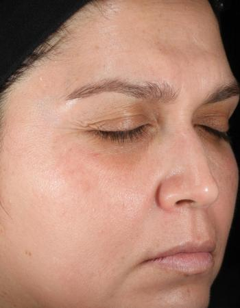 After 24 weeks of Obagi use