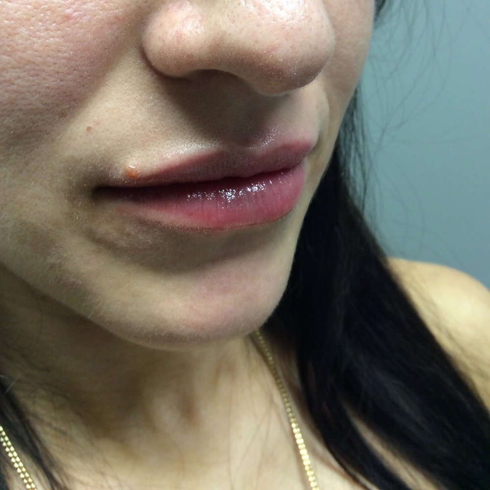 Lips after Juvéderm (1 syringe, age 27); Lips before Juvéderm; Photo courtesy of Pure Luxe