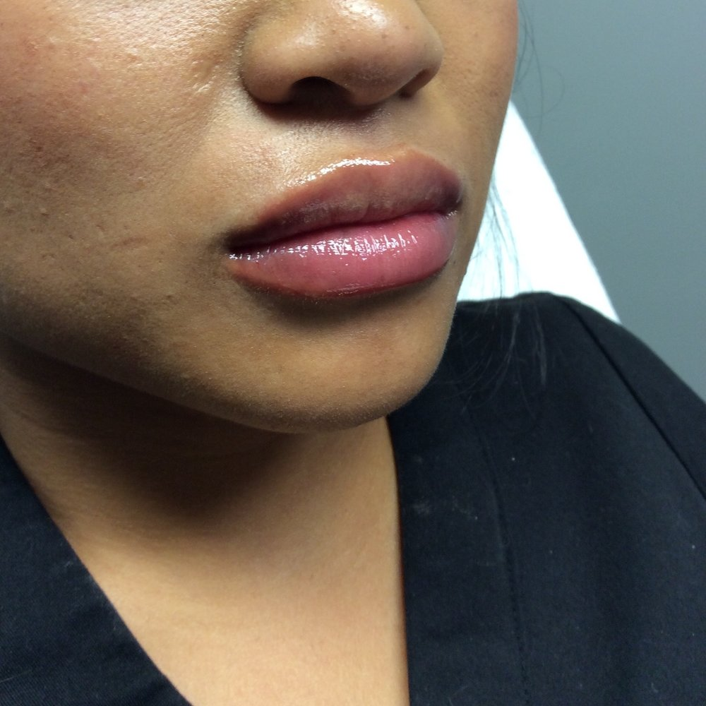 Lips after Juvéderm (1 syringe, age 28); Lips before Juvéderm; Photo courtesy of Pure Luxe