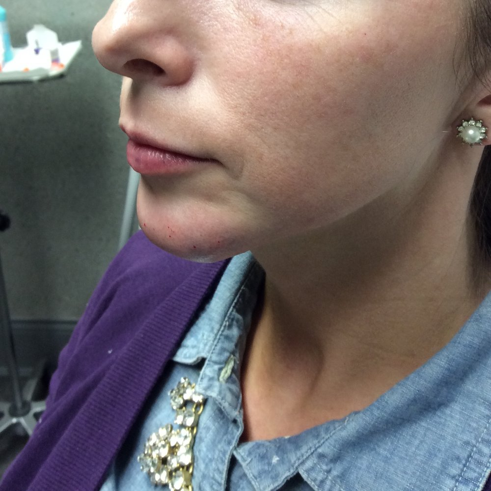 Chin after Juvéderm (3 syringes); Lips before Juvéderm; Photo courtesy of Pure Luxe