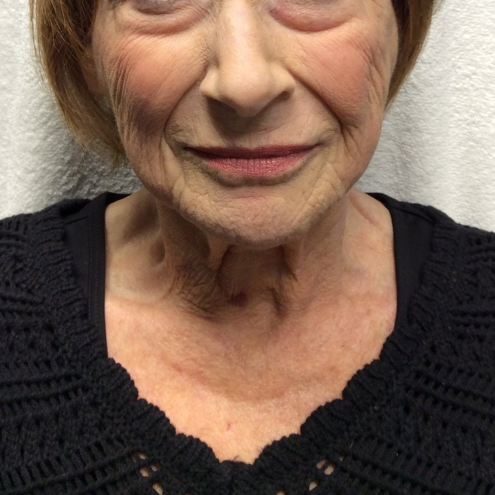 After Voluma & Juvéderm (4 Voluma syringes, 1 Juvéderm syringe, age 72), Lips before Juvéderm; Photo courtesy of Pure Luxe
