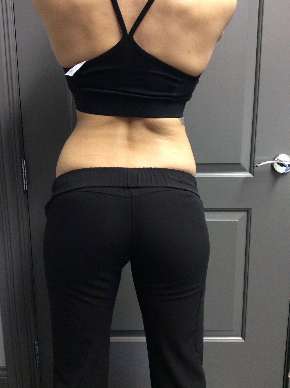 Pure Luxe patient's waist before CoolSculpting