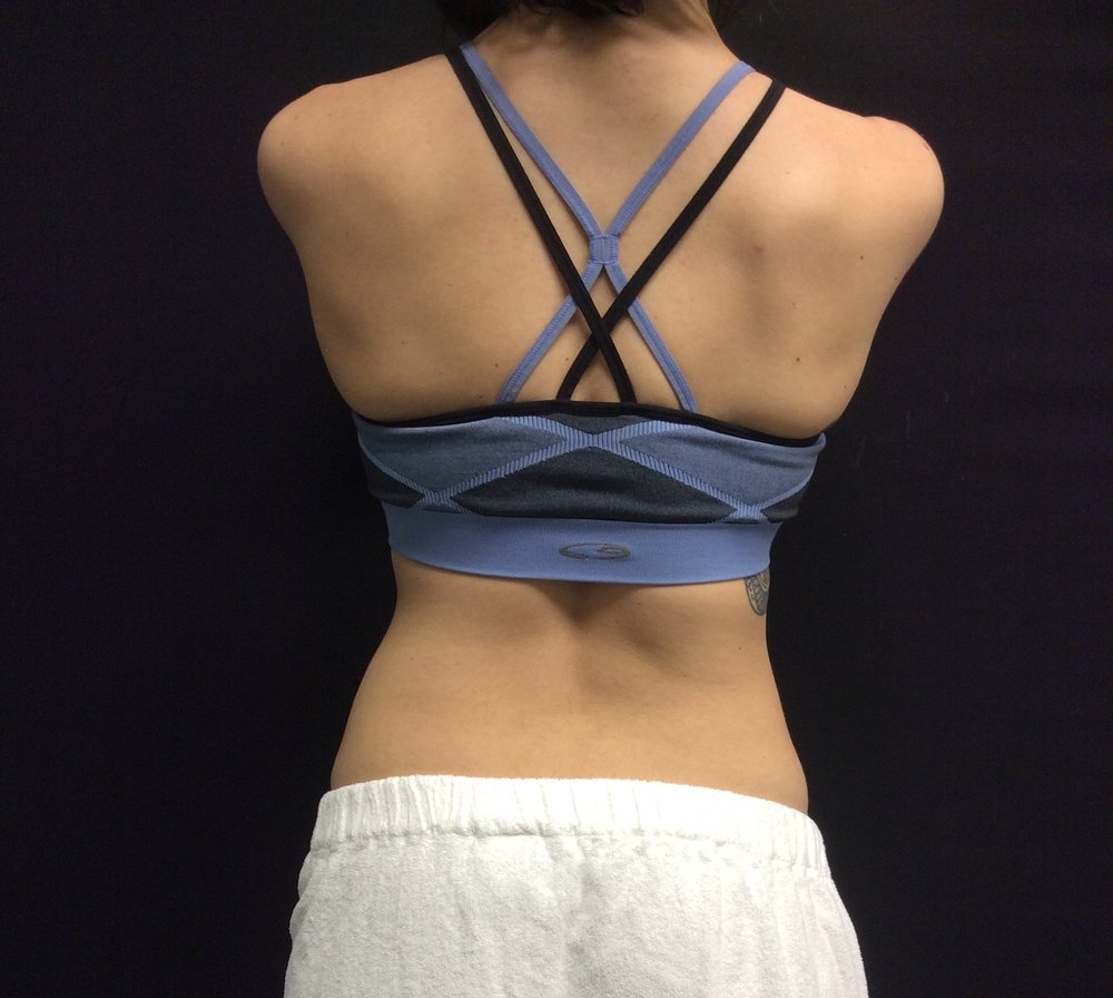 Pure Luxe Patient after CoolSculpting Treatment (waist)