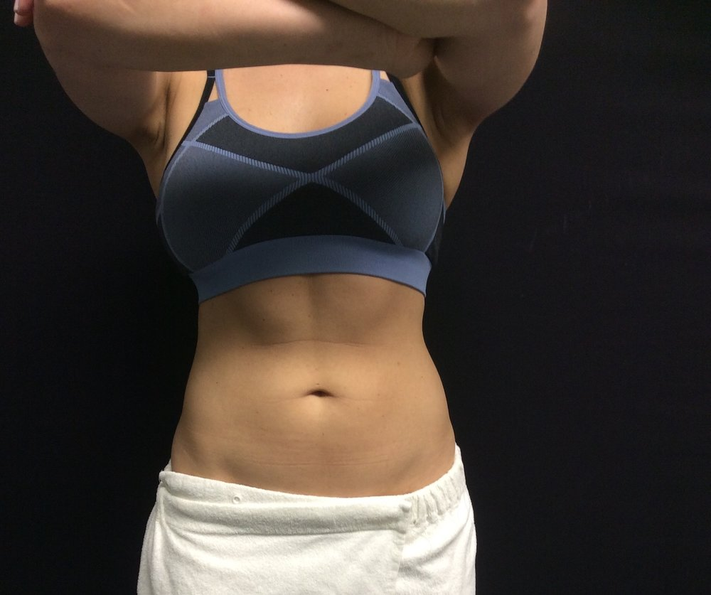 Pure Luxe patient's abdomen after CoolSculpting treatment