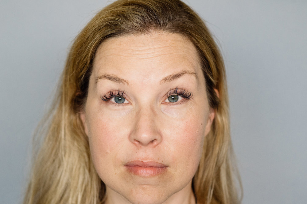 Pure Luxe patient before Botox