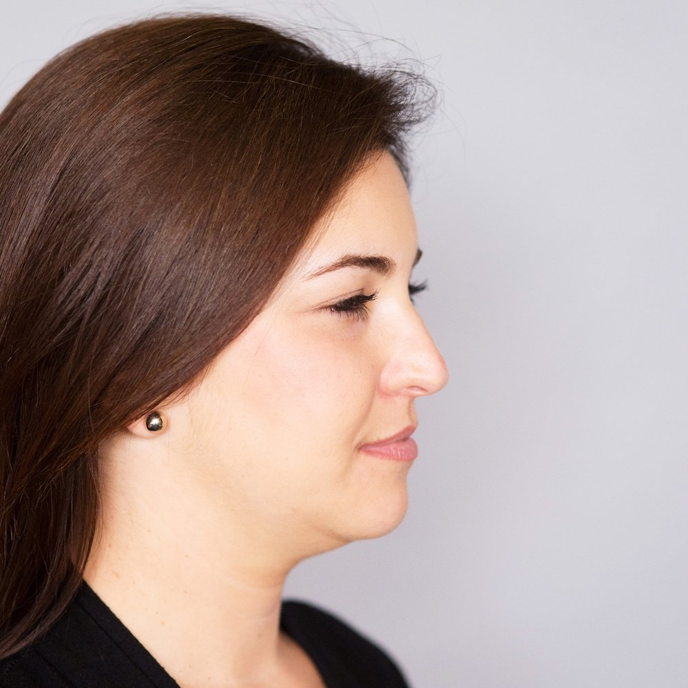 Pure Luxe Patient before Kybella Treatment