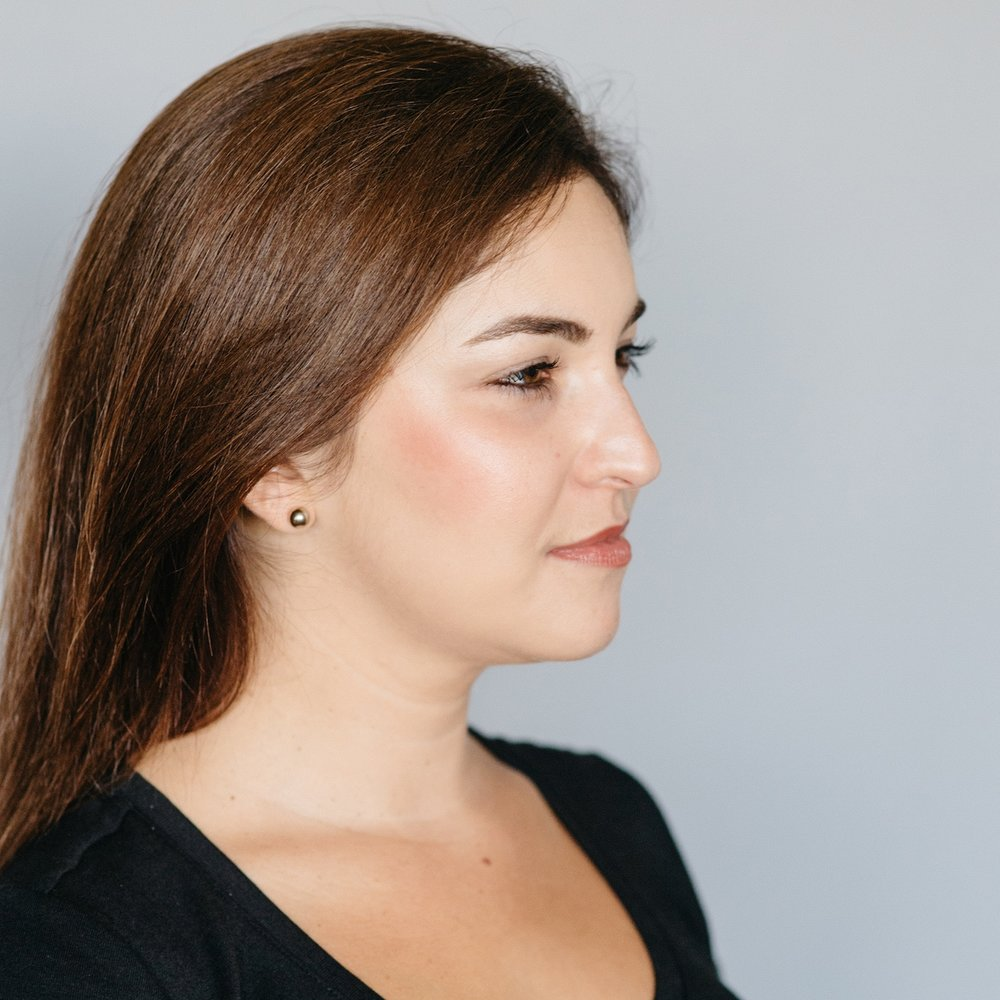 Pure Luxe Patient 8 Weeks after Kybella Treatment