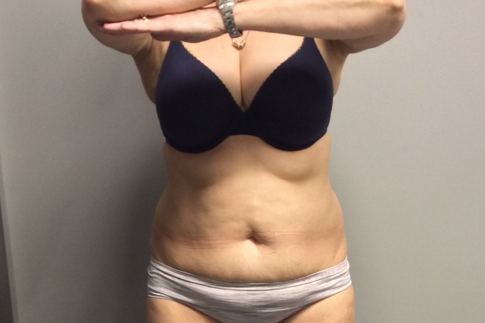 Pure Luxe Patient after 1 CoolSculpting Treatment (lower abdomen)