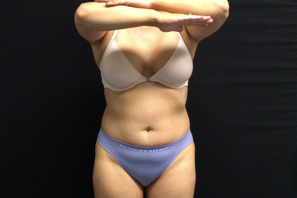 Pure Luxe Patient after 2 CoolSculpting Treatments (upper/lower abdomen)